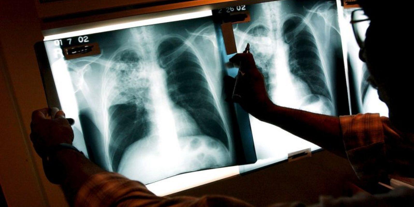 Esta enfermedad es la segunda causa de muerte después del sida, según datos de la Organización Mundial de la Salud (OMS). Foto:Getty