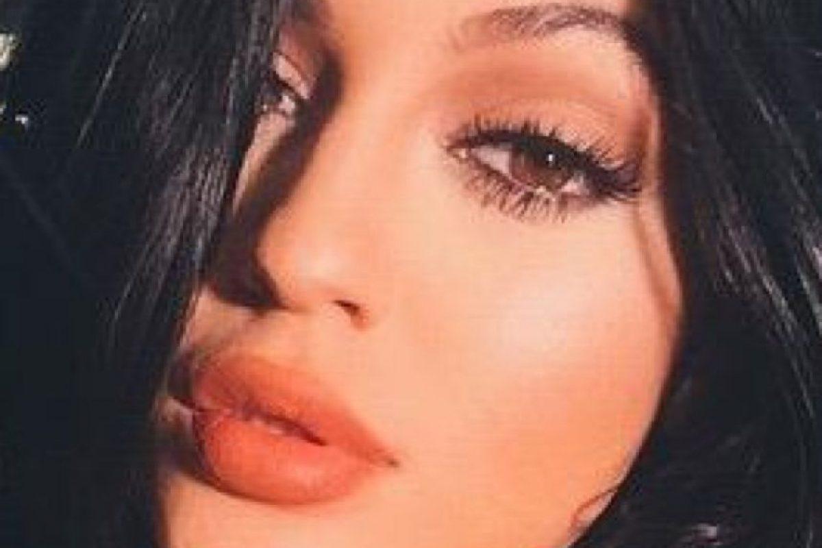 """No, la culpa nunca fue de Kylie. Ella afirmó que nunca pidió a nadie tener sus labios. Solo quiso que la gente fuese """"ella misma"""". Foto:vía Twitter"""