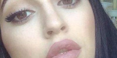 Pero en el ánimo por tener sus labios, hubo heridos graves. Foto:vía Twitter