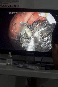 Tenía cientos de monedas y otros objetos metálicos. Llegó al hospital porque se quejó de un dolor de estómago. Foto:vía Barcroft Media/OtherImages