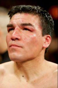 """Así terminó después de pelear 12 rounds con """"Money"""" el 4 de noviembre de 2006 Foto:Getty Images"""