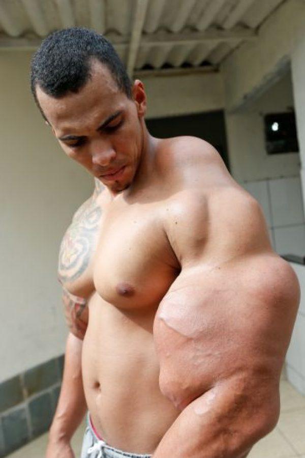 Esto le causó serios problemas médicos. Un galeno le advirtió que si seguía así, sus brazos tendrían que ser amputados. Foto:vía BarcroftMedia/OtherImages