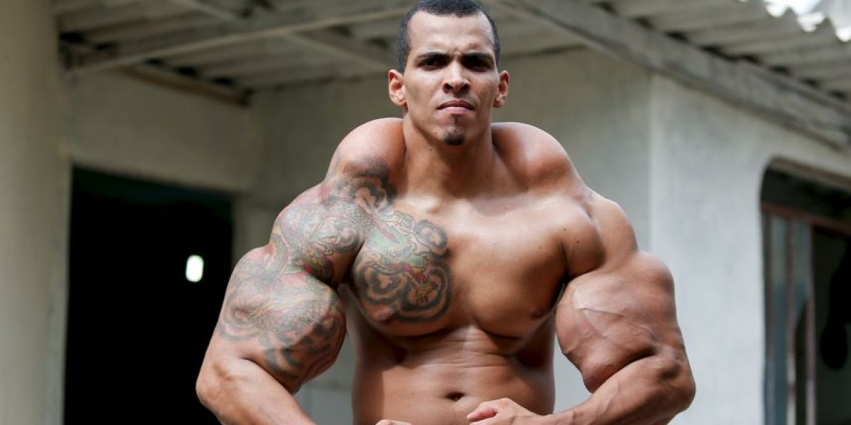 FOTOS: Hombre inyectó aceite en sus músculos para parecerse al