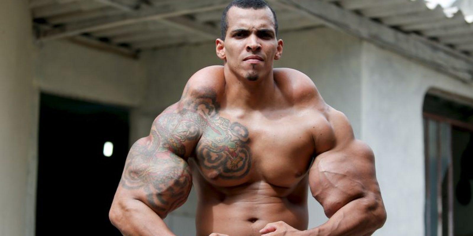"""Romario Dos Santos Alves, de 25 años, comenzó a obsesionarse con tener sus brazos y su musculatura como la del """"Increíble Hulk"""". Foto:vía BarcroftMedia/OtherImages"""