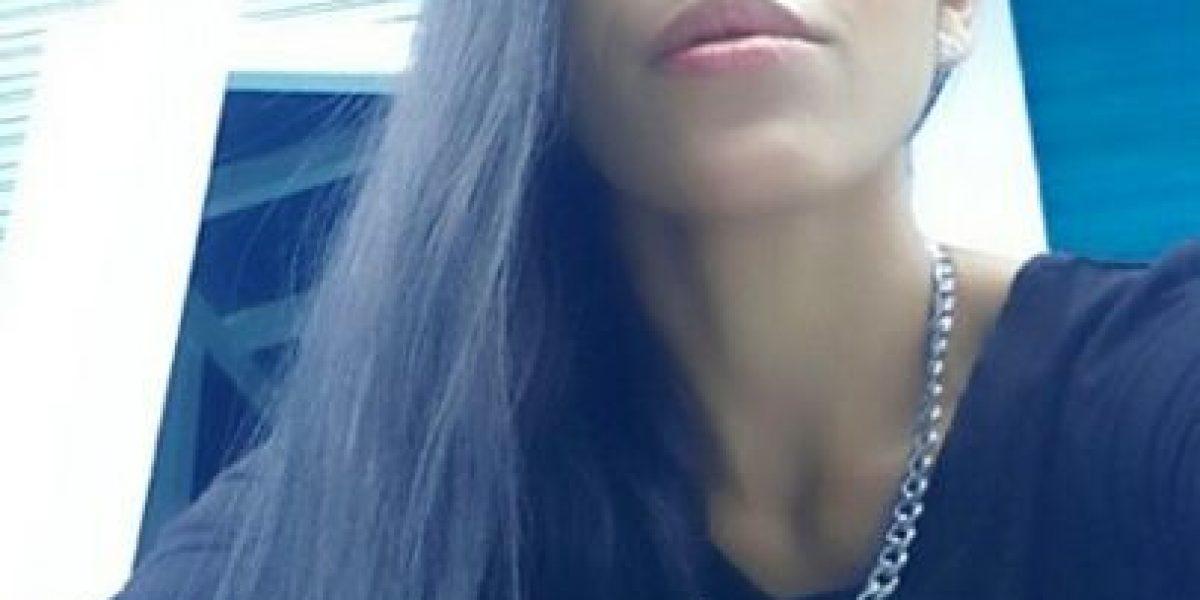 Fotos: Por dolor de oído y de cabeza Farina se somete a cirugía extrema