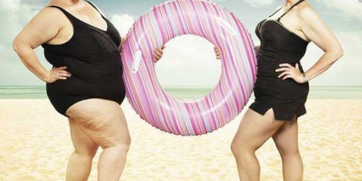 FOTOS: La transformación de esta mujer antes y después de su obesidad