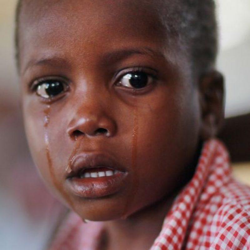 2. Cólera- Foto:Getty Images