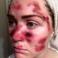 Así le quedó la cara luego de un tratamiento de cáncer de piel. Foto:vía Facebook/Tawny Willoughby