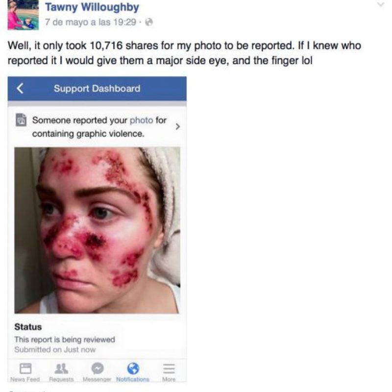 La imagen fue compartida más de 50 mil veces, aunque la reportaron, pero ya se hizo viral. Foto:vía Facebook/Tawny Willoughby