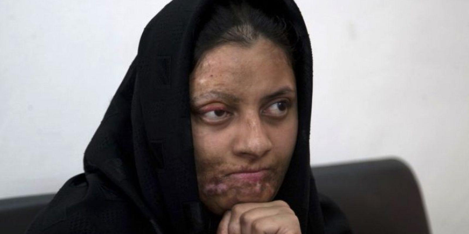 Ante este escenario, el cirujano plástico Asim Shahmalak, de 53 años, ha gastado más de 70 mil dólares de su propio dinero en cirugías reconstructivas para ayudar a víctimas de ataques. Foto:AP