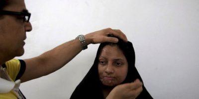 3. La noble ayuda de este cirujano plástico a mujeres atacadas con ácido Foto:AP