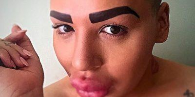 Iba a hacerse otra cirugía de nariz. Foto:vía Instagram/ Jordan James Parke