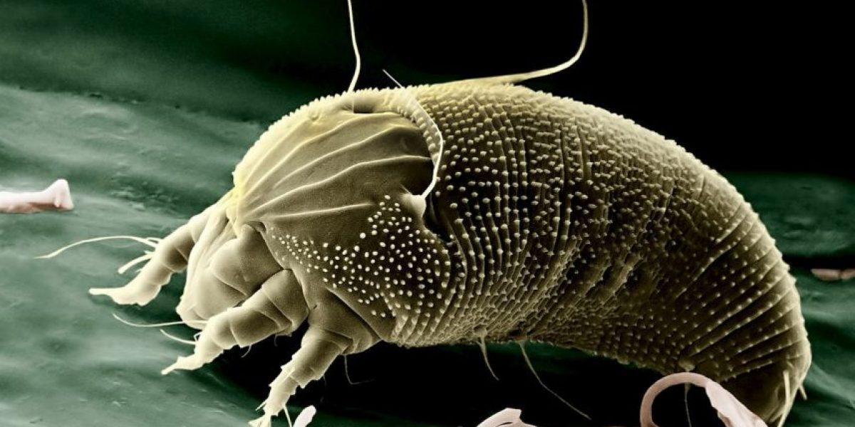 Estos parásitos podrían vivir ahora mismo en su cuerpo