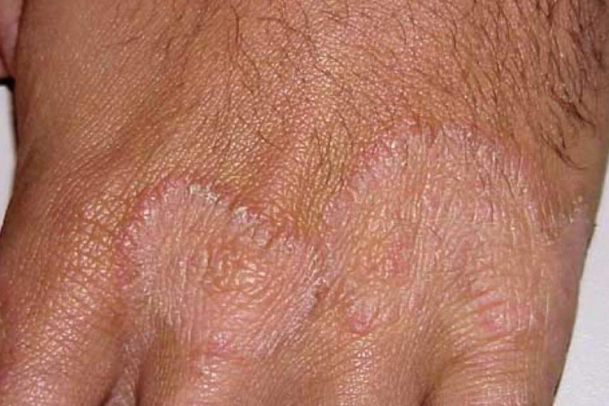 4. Tinea manuum o tiña también puede presentarse en manchas o sequedad en las manos. Foto:Healththype