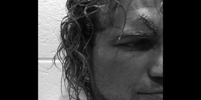Necesitó 10 puntos de sutura Foto:WWE