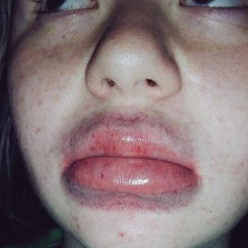 Esta técnica provocó que algunas personas sufrieran irritaciones, rasguños y hasta sangrados. Foto:vía Twitter