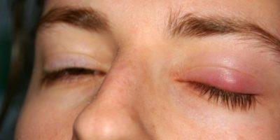 Aunque a menudo suelen ser inofensivas dichas alteraciones, se debe descartar alguna causa grave tal como abultamientos provocados por algún tumor. Foto:Wikimedia