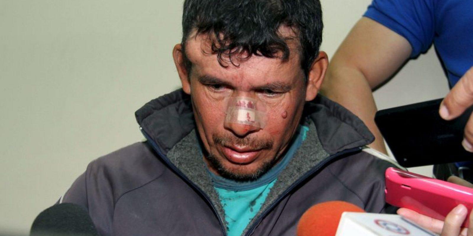 4. Este fue identificado como Gilberto Benítez Zárate Foto:AFP