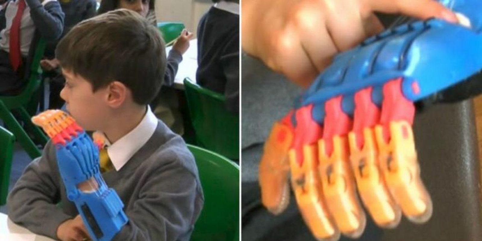 Millergan Lowe cuando estrenó su prótesis, él mismo escogió los colores Foto:Twitter