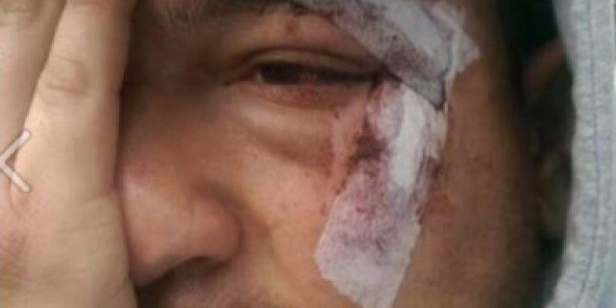 FOTOS: Brutal agresión a hinchas de
