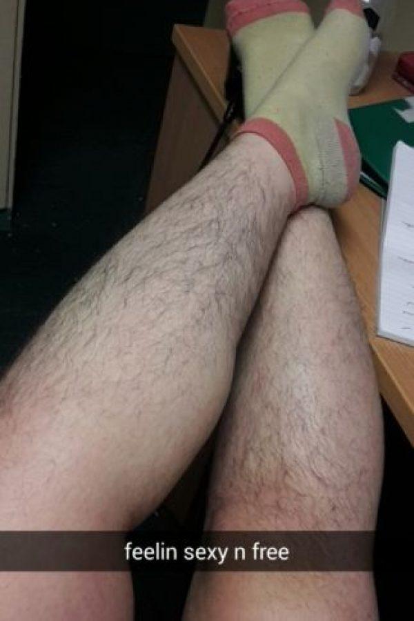 Se cansó de depilarse y tener vello grueso y puntiagudo Foto:Vía Tab
