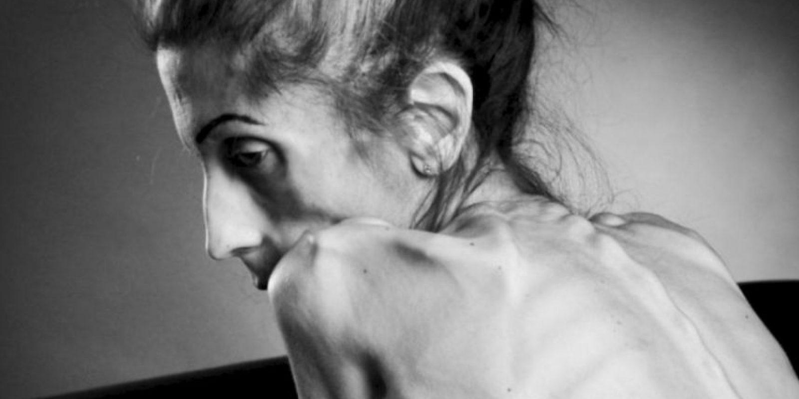 Ella suplicaba por atención médica, pues su tratamiento debía ser especializado. Foto: Vía gofundme.com/savemyrachael