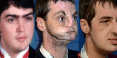 5. Mujer conoce al hombre al que le transplantaron el rostro de su hermano Foto:Vía University of Maryland Medical Center