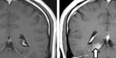 Este se llama Spirometra erinaceieuropaei. Vivió 4 años adentro. Foto:vía Genome Biology
