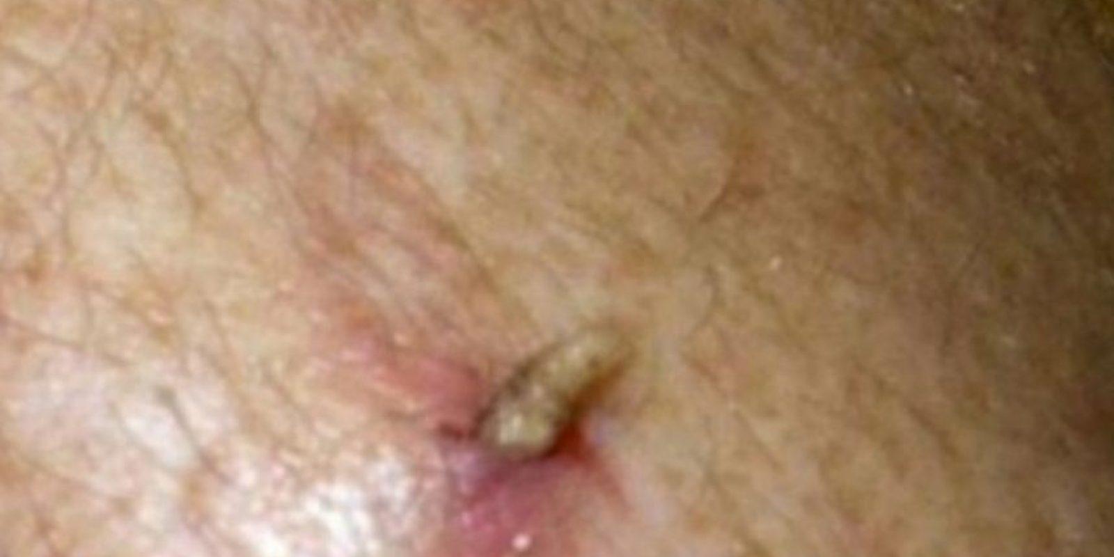 El moscardón humano también deposita sus huevos en heridas. Y los gusanos… salen así. Foto:vía Youtube