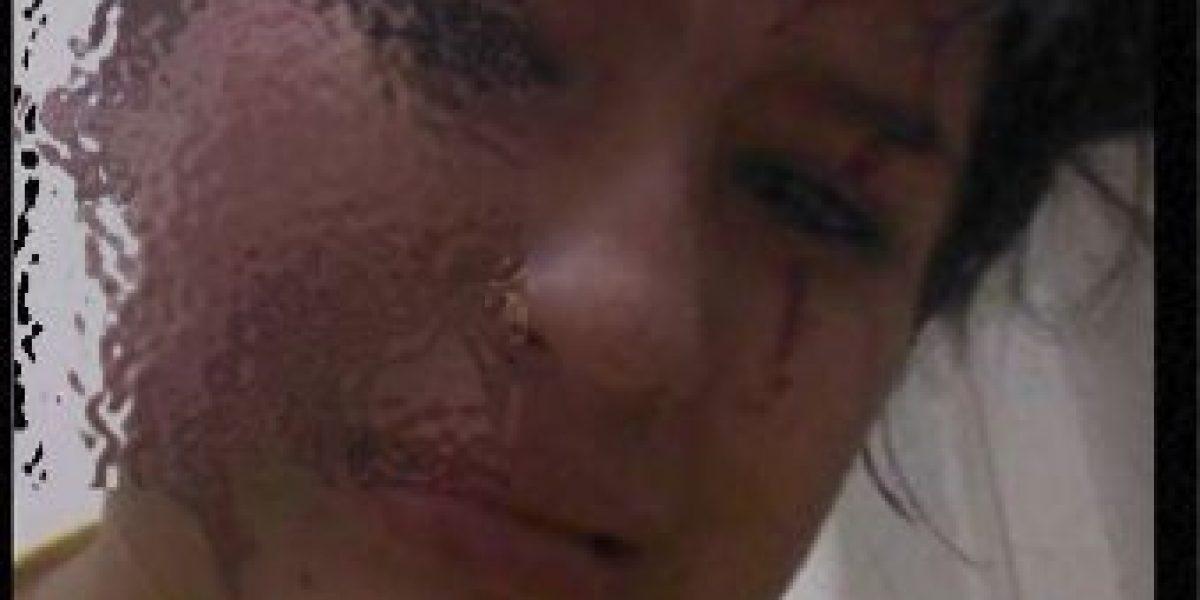 FOTOS: ¡Ni una más! El caso de la mujer a la que le mordieron la oreja
