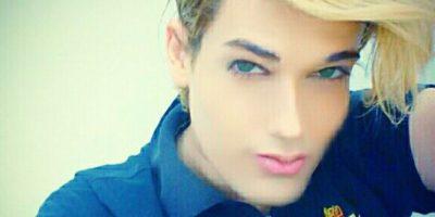 Se sometió a unas 20 operaciones para pareceres al novio de Barbie Foto:Vía instagram.com/celsosantebanes/