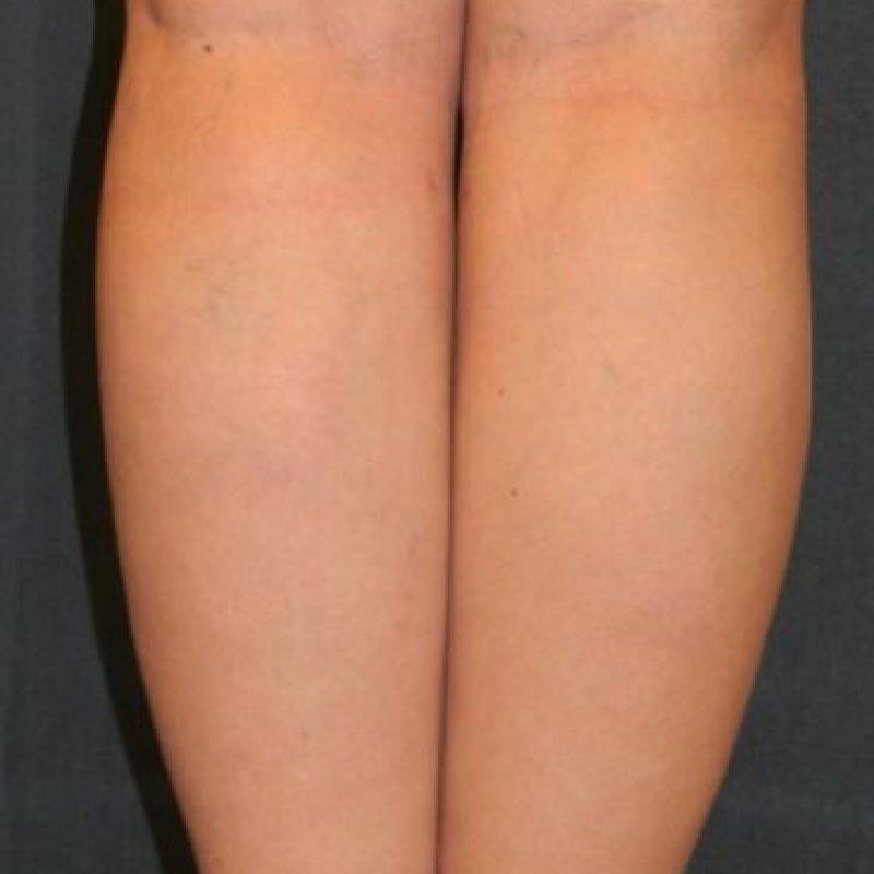 4. Detrás de las rodillas. La manera de estimularlas es con caricias y besos suaves, confirma un estudio de la University Bangor, en Reino Unido. Foto:Wikimedia