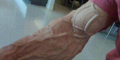 Los que fastidiaron su uretra: En 2011, un anciano australiano metió un tenedor de 10 centímetros en su pene que lo hizo sangrar. Foto:vía Tumblr