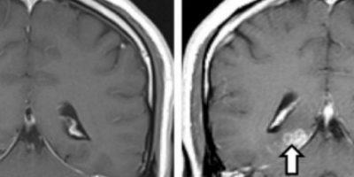 Este se llama Spirometra erinaceieuropaei. Vivió 4 años adentro. Foto:Genome Biology
