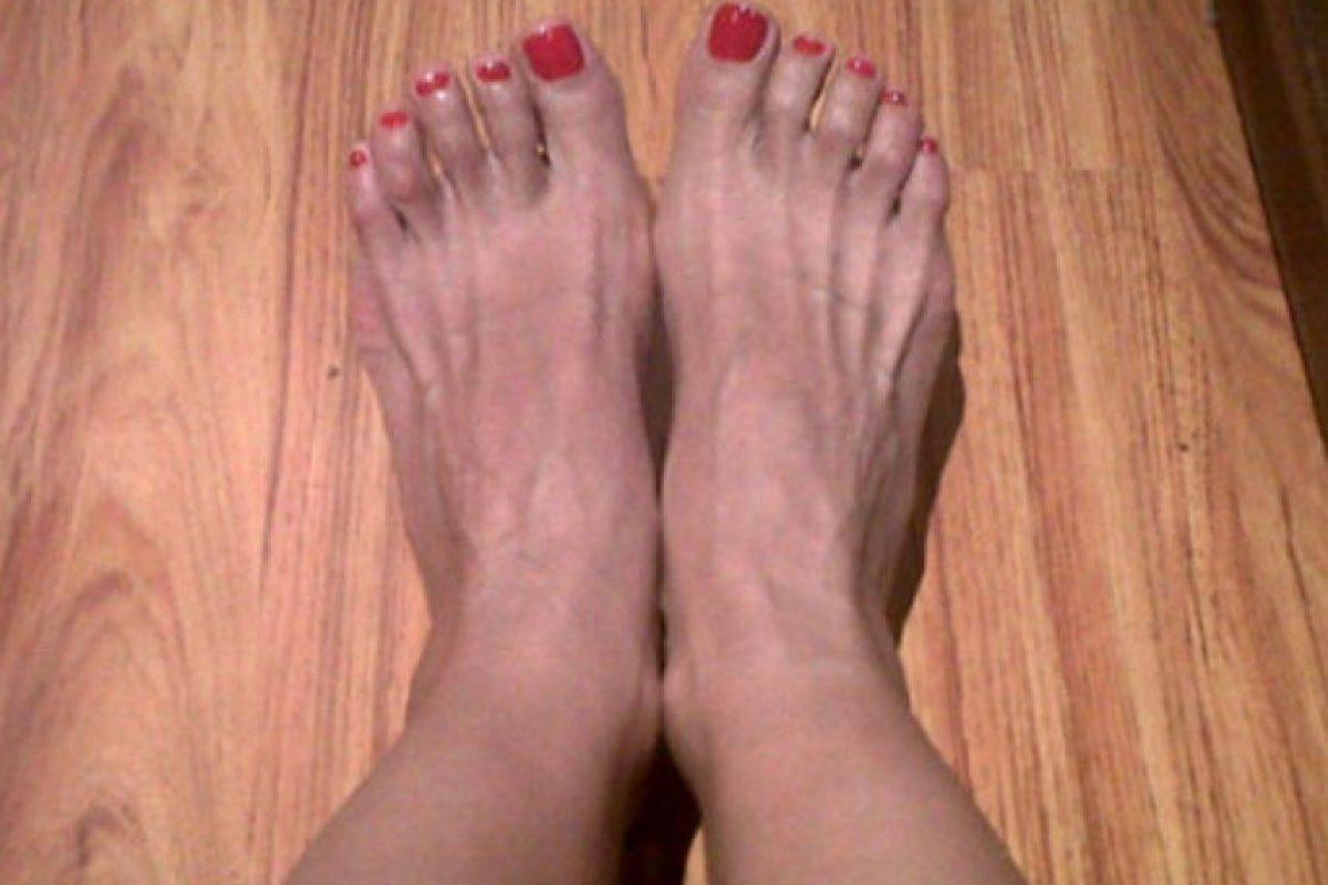 Pero lastimosamente sus pies no son tan lindos… Sus seguidores afirman que se ven cuadrados. Foto:Instagram