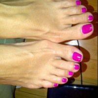 Sin embargo, sus pies tienen los conocidos 'juanetes'. Foto:Instagram