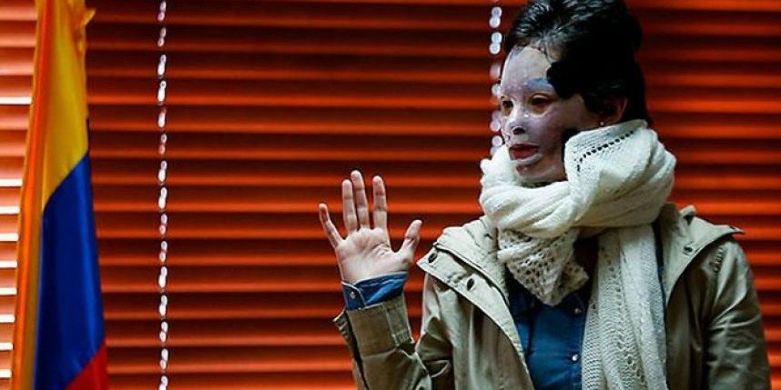 El médico Ricardo Mora hizo una evaluación de las lesiones de Natalia Ponce Foto:Archivo Publimetro
