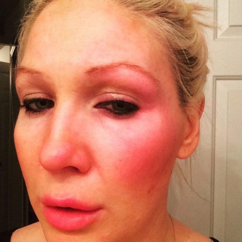 Así quedó el rostro de Jillian Hall tras sufrir un ataque por parte de jóvenes desconocidos. Foto:Vía instagram.com/jillianhall1