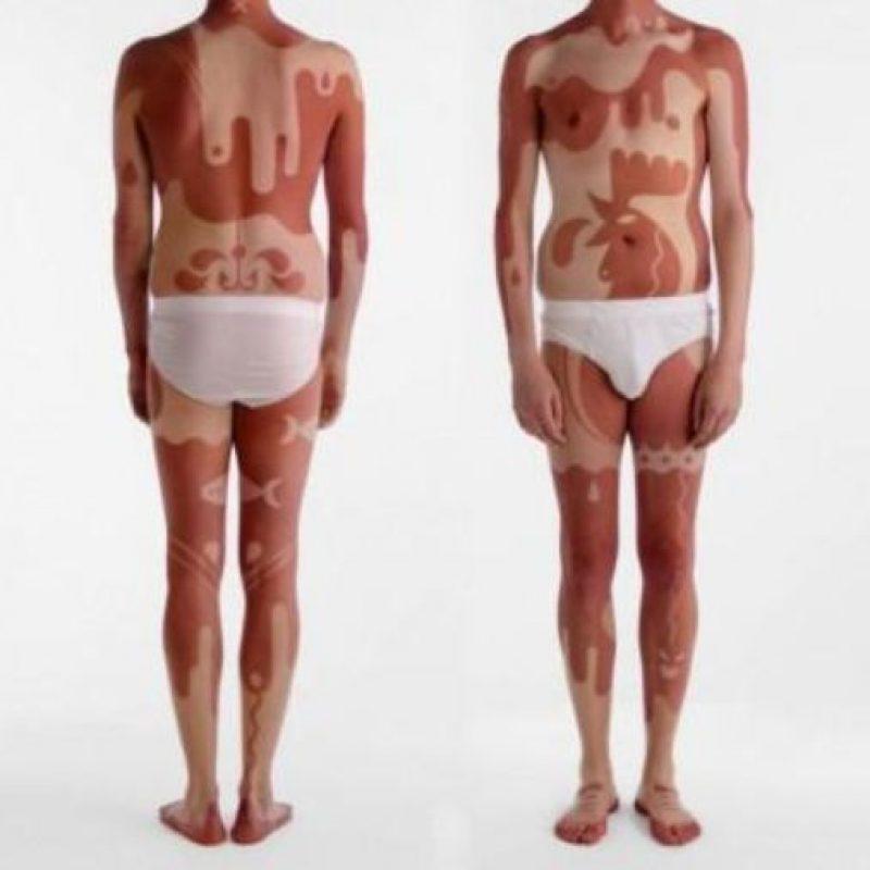 Pero no solo el hecho de tener melanomas malignos hace que esto sea peligroso. Foto:vía Twitter