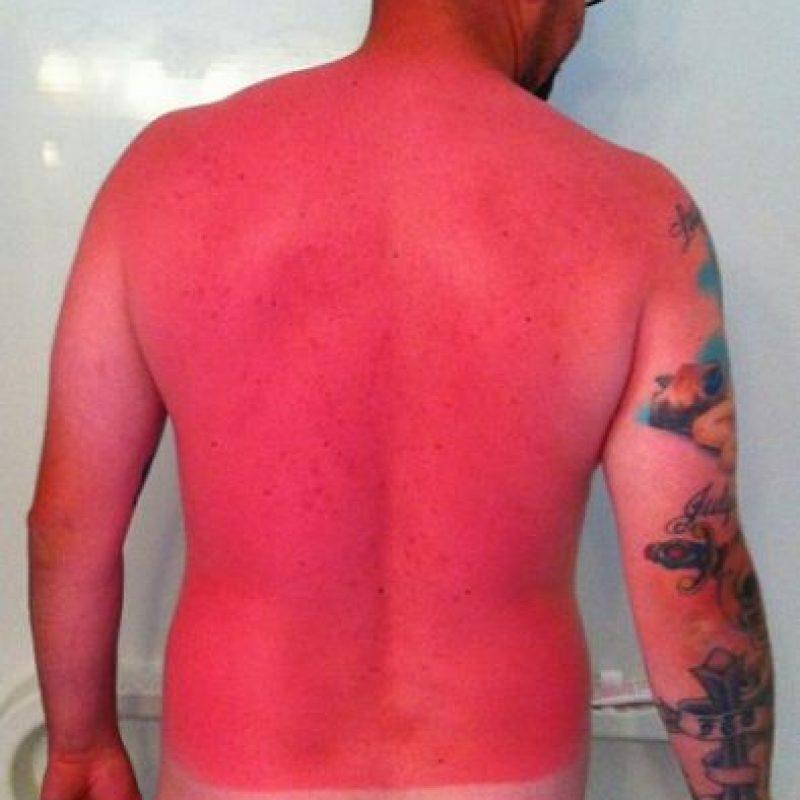 Así quedó este hombre luego de pasar horas expuesto al sol. Foto:Vía Imgur