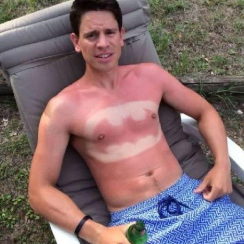 La exposición prolongada a los rayos del sol sin el uso de bloqueador solar aumenta los riesgos de padecer cáncer de piel. Foto:Vía Twitter/#SunBurnArt