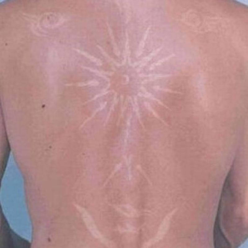 Melanoma: es el tipo de cáncer más peligroso, incluso puede ser mortal. Foto:Vía Twitter/#SunBurnArt
