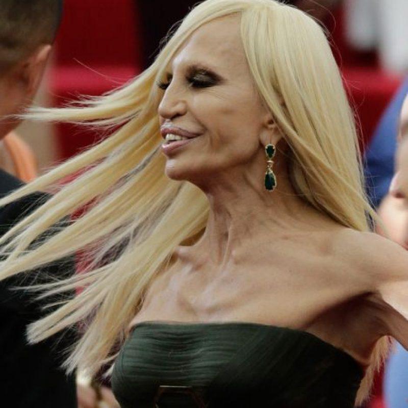 Sus múltiples cirugías no la ayudaron en nada. Foto:vía Getty Images