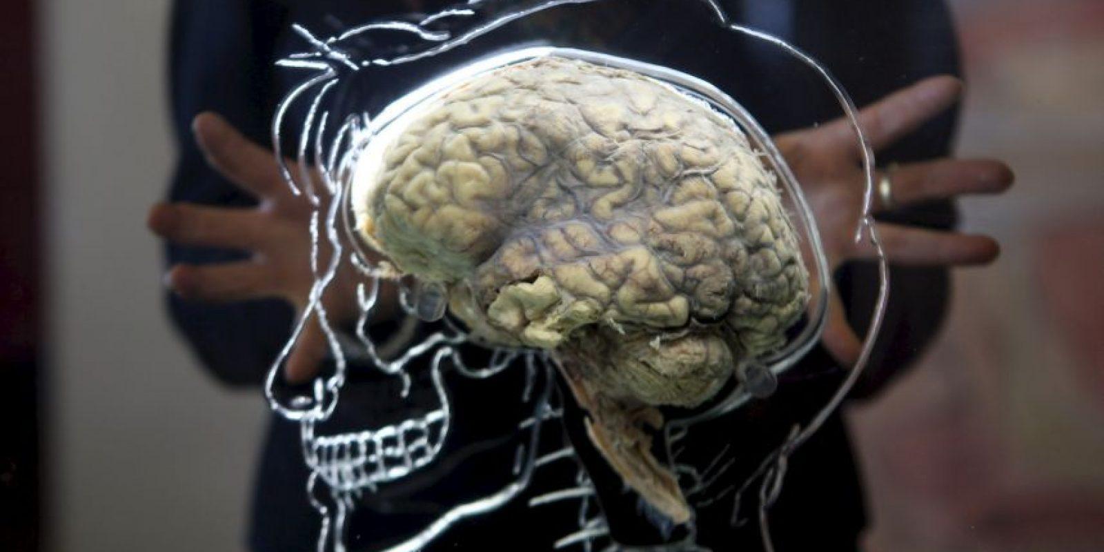5. El cerebro congelado Foto:Getty Images