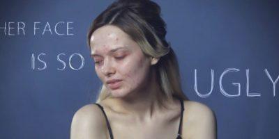 Y eso fue hace tres años, según el portal Beauty Stats. Foto:vía Youtube/My Pale Skin