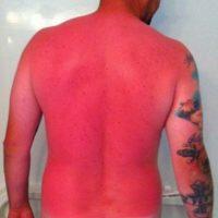 4. Hombre sufrió grave quemadura: su piel quedó rosa y brillante Foto:Imgur