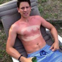 Seguramente no sabían que podíamos experimentar quemaduras solares tan luminosas, ¿verdad? Esperamos que no sea una variante de la tendencia #SunBurnArt. Foto:Tattoo Sun