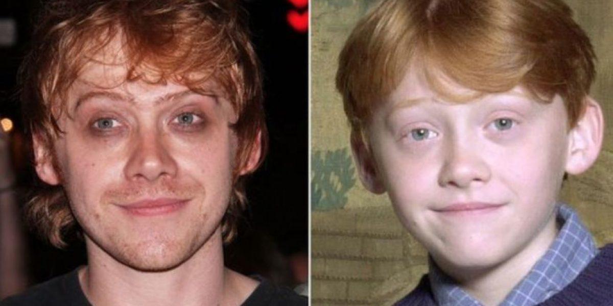 FOTOS: ¿Por qué crecieron? A estos famosos no les sentaron bien los años