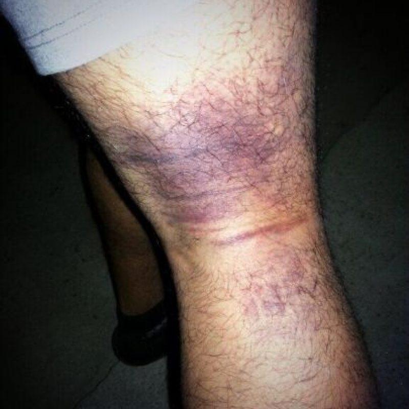 Posteó una lesión que tuvo durante un partido en tercera división Foto:Vía twitter.com/juanmauri