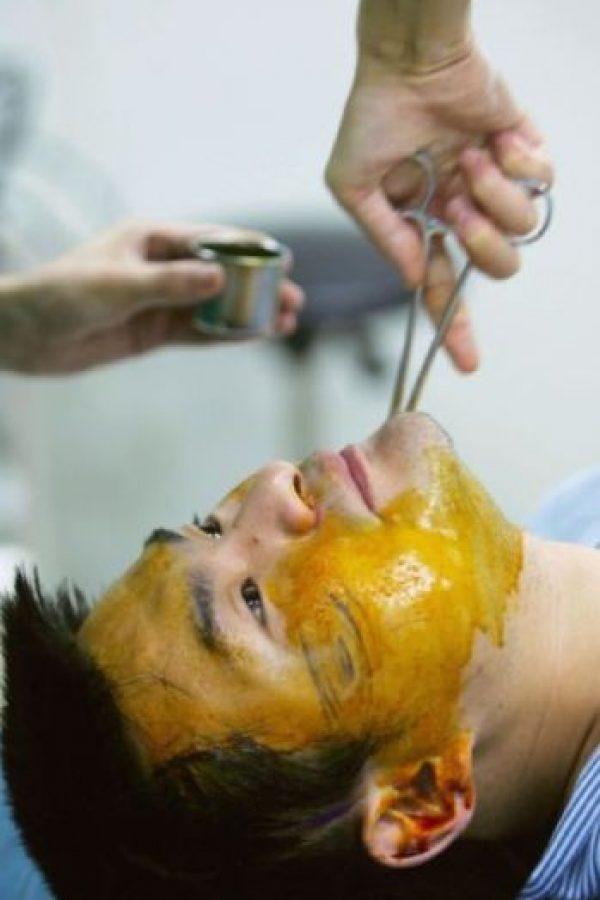Una encuesta de la Academia Estadounidense de Cirugía Plástica Facial y Reconstructiva se realizó en dos mil 700 clínicas Foto:vía Getty Images